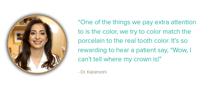 Quote from Dr. Kazerooni, dentist in McLean VA, about paying special attention to the color of the porcelain for your CEREC dental crown