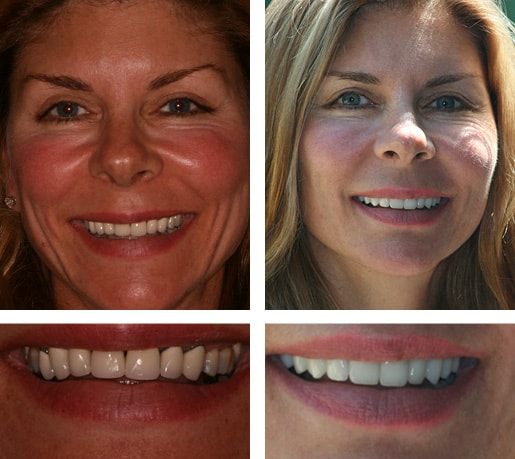 Dental Smile Gallery Case Showing A Real Patient's Smile Transformation